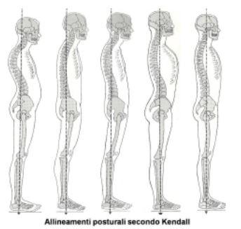 Figura 2: allineamenti posturali secondo Kendall e altri, 2002.